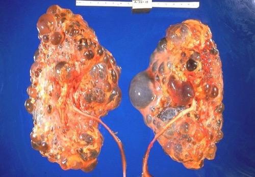 Leberzysten ADPKD Autosomal dominante polyzystische Nierenerkrankung