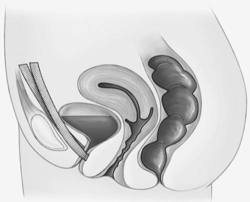Alloplastisches vorderes Vaginalband