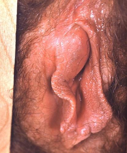 Abbildung Bartholinitis