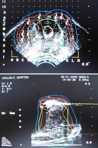 Brachytherapie Prostata intraoperative Dosimetrie Seeds Ketten Implantation Seedsposition