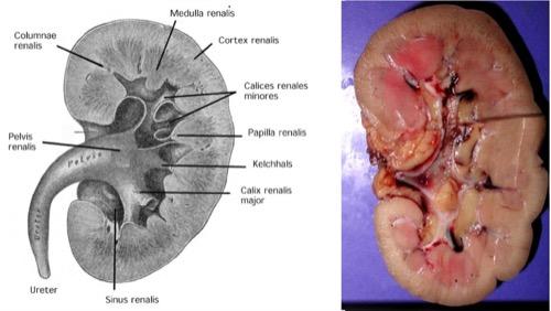 Abb. Anatomie des Nierenbeckens und der Nierenkelche