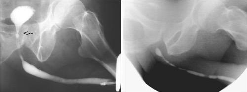 Retrograde Urethrographie der Harnröhrenstriktur Harnblasenhalsstriktur nach TURP mehrere penile und bulbäre Harnröhrenstrikturen