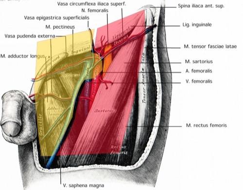 Inguinale Lymphadenektomie Dissektionsgebiet Anatomie modifiziert Catalona radikalen inguinalen Lymphadenektomie Regio inguinalis A. + V. circumflexa iliaca superficialis N. femoralis A. + V. epigastrica superficialis Lig. inguinale A. + V. pudenda externa M. sartorius Spina iliaca ant. sup. M. tensor fasciae latae M. pectineus M. adductor longus M. rectus femoris V. saphena magna