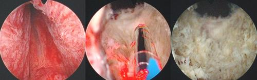 KTP Greenlight Laser Vaporisation der Prostata BPH