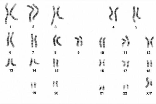 Abbildung normales Karyogramm