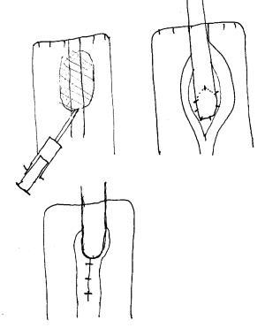Schema Harnleiterimplantation in ein Kolon-Conduit Harnableitung nach Zystektomie Harnblasenkarzinom