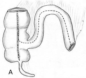 Darminzision MAINZ Pouch 1 Harnableitung nach Zystektomie Harnblasenkarzinom