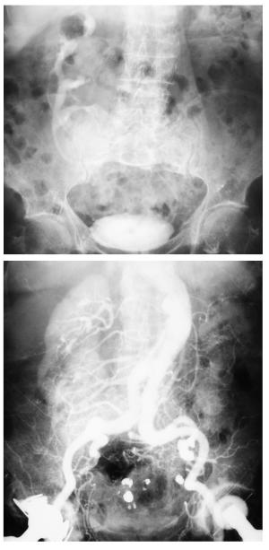 Abbildung gekreuzte Nierenektopie im Urogramm und in der Angiographie