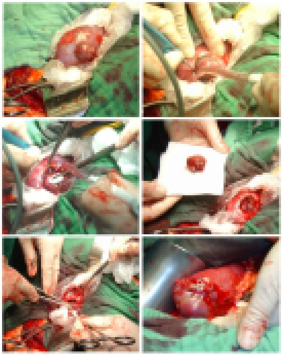 Nierenteilresektion: a) Operationssitus: die Nierengefäße sind geklemmt und die Niere gekühlt. b) und c) zirkuläre Umschneidung des Tumors mit dem Elektroskalpell d) Nierenparenchymdefekt nach Teilresektion e) und f) tief durchgreifende Parenchymnähte zur Hämostase.
