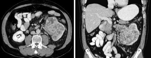 CT-Abdomen bei Nierenzellkarzinom pT3b Nierenzellkarzinom.