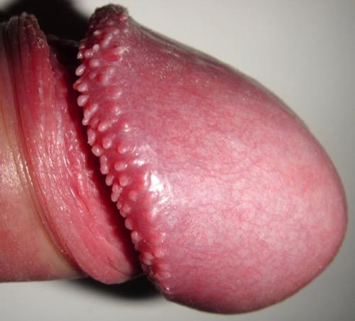 Papillomatosis coronae glandis