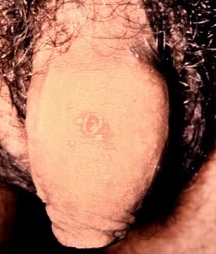 Lichen ruber planus am Penis