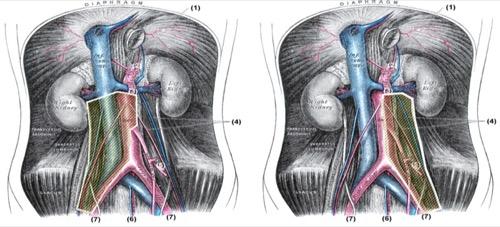 Dissektionsgrenzen der modifizierten rechtsseitigen und linksseitigen retroperitonealen Lymphadenektomie
