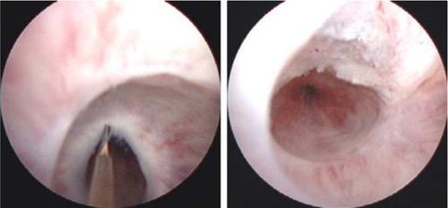 transurethrale Inzision der Striktur unter Sicht bei 12 Uhr Urethrotomia interna nach Sachse