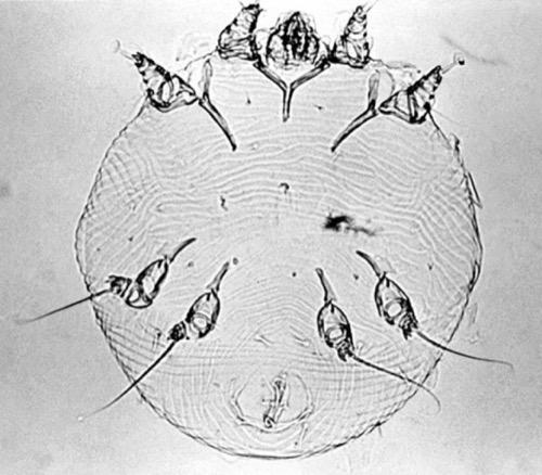 Krätzmilbe Sarcoptes scabiei var. hominis Erreger Skabies Dermatitis
