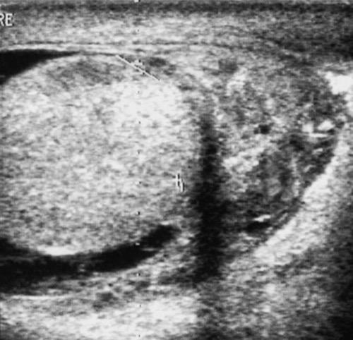 Sonographie einer Nebenhodenentzündung
