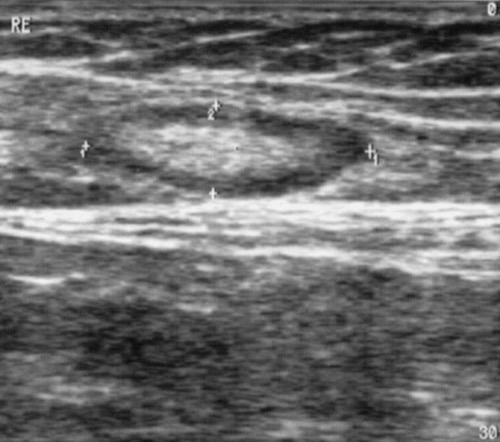 Ultraschall: gutartige Vergrößerung der Leistenlymphknoten