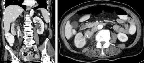 Nierenbeckenkarzinom CT Abdomen Ureterkarzinom Harnleiterkarzinom Urothelkarzinom