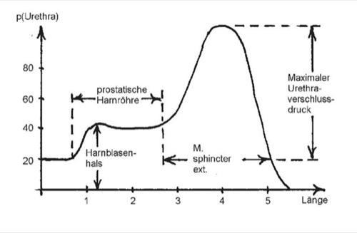 Urethradruckprofil bei Männern