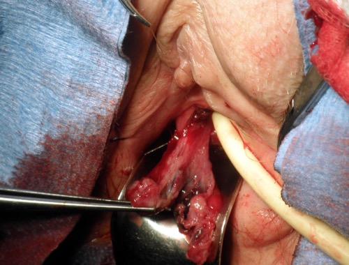 Resektion eines Harnröhrenkarunkels Technik 1