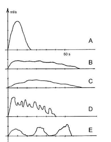 Differentialdiagnose von Uroflow-Kurven (Harnstrahlmessung)