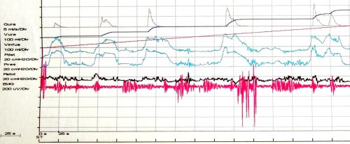 Kurvenverlauf einer Urodynamik (Harnblasendruckmessung, Zystometrie) einer autonomen Harnblase