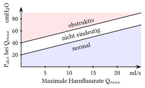 ICS Nomogramm (BOOI) zur Ermittlung einer subvesikalen Obstruktion in der Druck-Fluss-Kurve