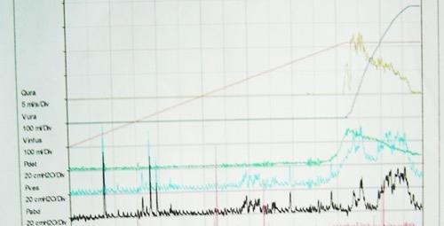 Kurvenverlauf einer Urodynamik (Harnblasendruckmessung, Zystometrie): Normalbefund