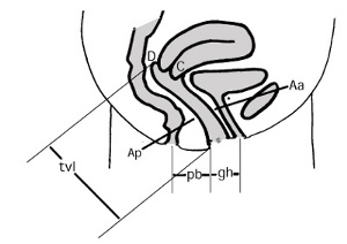 Schweregrad der Beckenbodensenkung (Beckenbodendeszensus) nach ICS