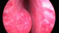 Zystoskopie: benigne Prostatahyperplasie