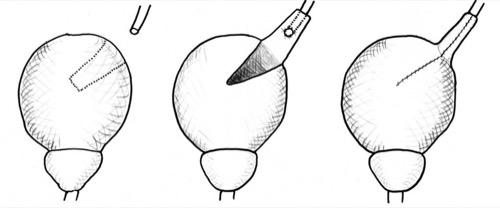 Harnleiterreimplantation mit Boari-Harnblasenlappen