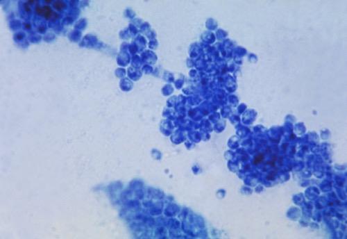 Candida Mikroskopie Pilzinfektion Harnwegsinfektion Sprosszellen