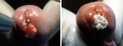 Abbildung Condylomata acuminata der Harnröhre, vor und nach Lasertherapie