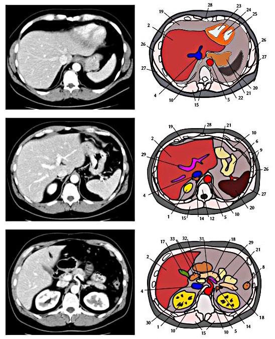 Abbildung CT Schnittbild Anatomie Abdomen Becken 1