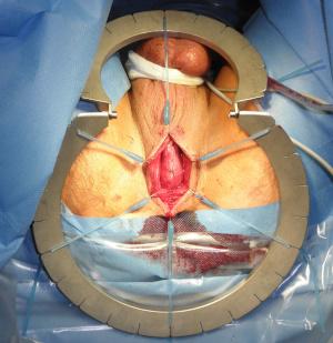 Dammschnitt: perinealer OP-Zugang zur Harnröhre