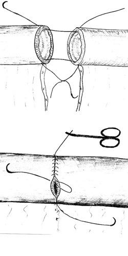 Abb. Handanastomose Dünndarm