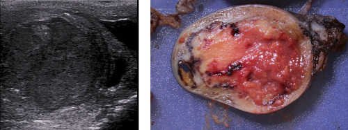 Abbildung embryonales Karzinom in der Sonographie und in der Makroskopie