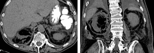 Abb. CT einer emphysematösen Pyelonephritis
