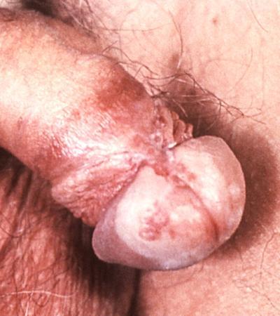 Kneifender Schmerz im Penis