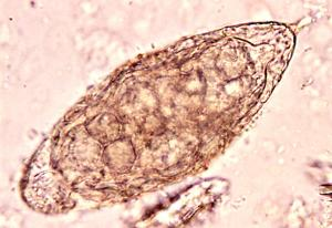 urogenitale Schistosomiasis Bilharziose Urinsediment