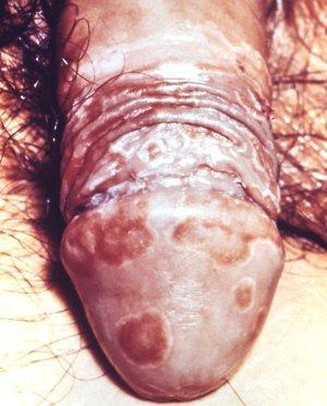 Urologisches Bilderrätsel Fall 6