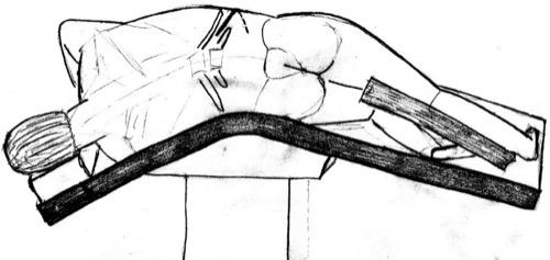 Abbildung Flankenschnitt: Lagerung und Hautschnitt für die Nierenfreilegung