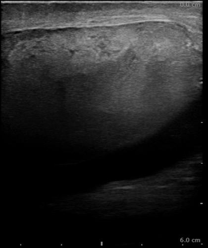 Abbildung Ultraschall (Sonographie) einer kompletten Hodenruptur