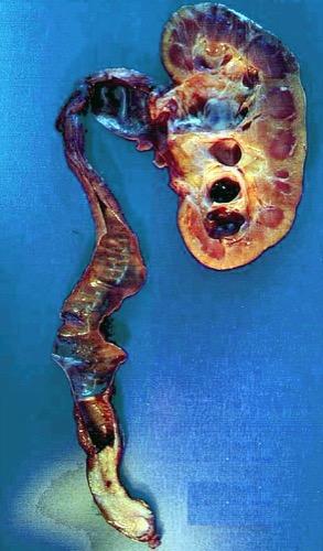 Abbildung Distales Ureterkarzinom (pT2 G2) mit drittgradiger Hydronephrose.