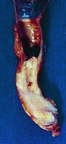 Abbildung Distales Ureterkarzinom (pT2 G2) mit deutlicher Hydronephrose