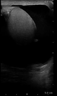 Abbildung: Sonographie einer Hydrozele testis (Wasserbruch)