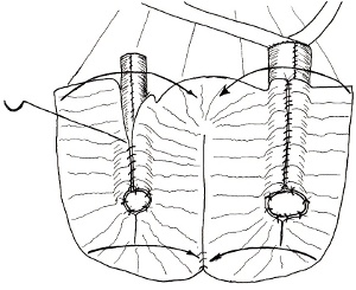 Abbildung 3: kontinenter Ileumpouch als Harnableitung nach Zystektomie Harnblasenkarzinom