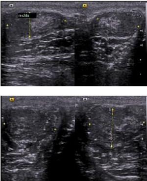 Abbildung Hodensonographie bei einem Patienten mit Klinefelter-Syndrom