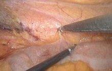Laparoskopie linkes Kolon