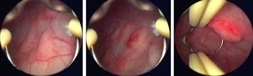 Abbildung Zystoskopie Malakoplakie der Harnblase